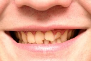 5 dental procedures to repair your cracked or broken tooth