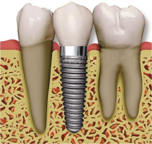 Zirconium Implants