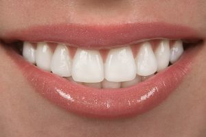 Porcelain Veneers Vs. Dental Crowns: What's the Difference?