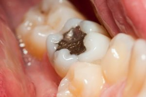 Killer In Your Mouth: Remove Amalgam Fillings And You Will Be Healed Of Many Diseases