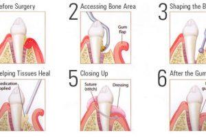 Fighting Gum Disease: How to Keep Your Teeth