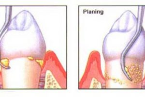 Deep Cleaning Your Teeth: When To Do It