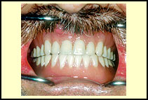 Patient wearing final upper and lower dentures