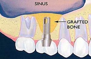 sinus-lift2[1]