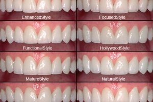 Choosing the Perfect Shaped Porcelain Veneers
