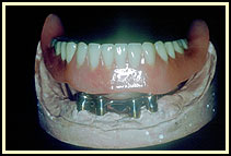 The denture is being seated on the implants and bar