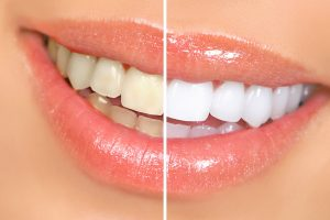 Best Toothpastes for Whitening Your Teeth
