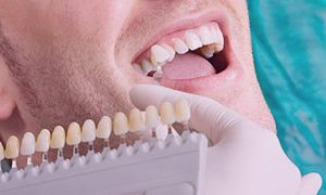 What Does Teeth Whitening Do to Your Teeth?