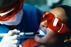 Whiten Teeth at Home or in the Dentist's Office?