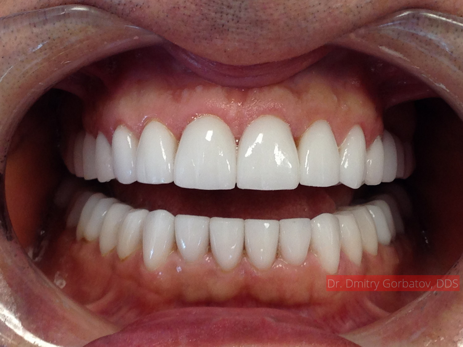 Before Amp After Gorbatov Dentistry Your Dentist In