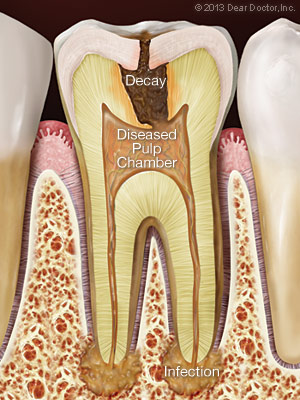 A cross section showing infection from tooth decay spreading into the pulp and bone at the end of the roots.