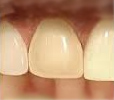 Something about your veneered tooth feels different. What should you do?