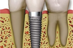 Interventions for replacing missing teeth: antibiotics at dental implant placement to prevent complications