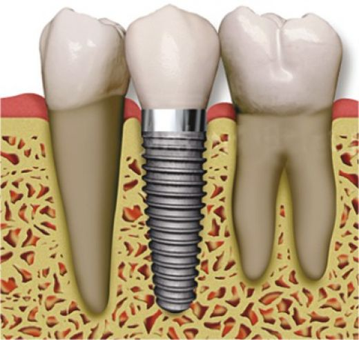 Zirconium Implants