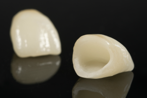 That's How Porcelain Crowns look like