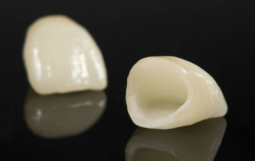Silver Crown Tooth >> Porcelain Crowns, Bridges and Feelings – Dr. Gorbatov Dentistry