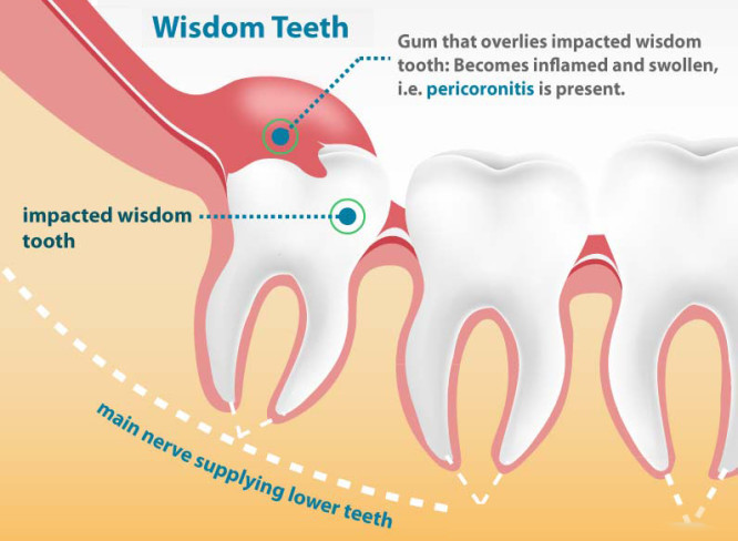 wisdom tooth extraction gorbatov dentistry your dentist in rh gorbatovdentistry com diagram of mouth with wisdom teeth Teeth Names