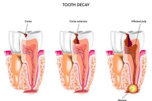How to Stop Tooth Decay, Dental Caries