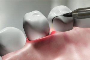 Benefits of Laser Technology for Cosmetic Dentistry