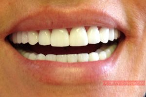 3 Things to Consider Before Getting Veneers