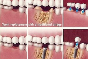 Dental Bridge Vs. Implant: Which Is Right For You?