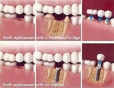 Dental Bridge Vs Implant Which Is Right For You