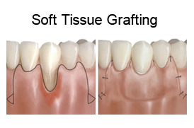 Soft Tissue Grafting