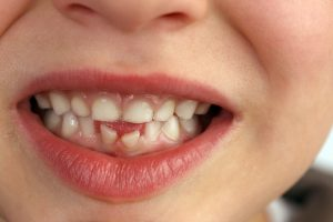When Is It Necessary To Extract Baby Teeth?
