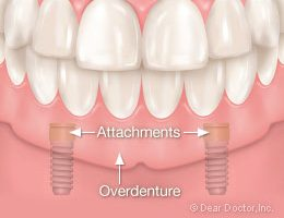 Implant Overdentures for the Lower Jaw