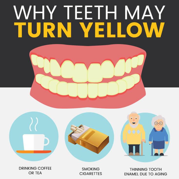 Why Do Teeth Turn Yellow Gorbatov Dentistry Your