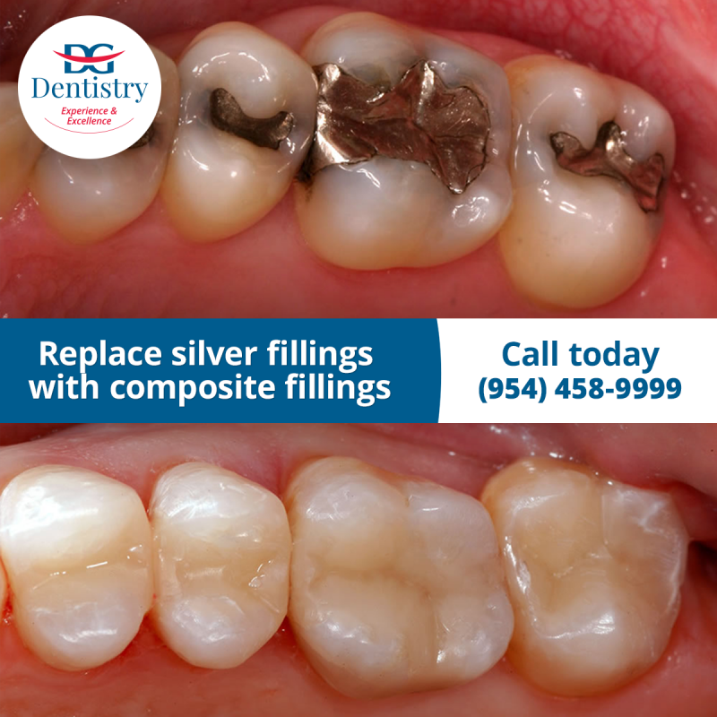Replace silver fillings with composite fillings