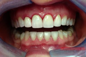 After Full Mouth Rehabilitation