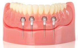 Mini Dental Implants: Life-Changing Options For Denture Patients