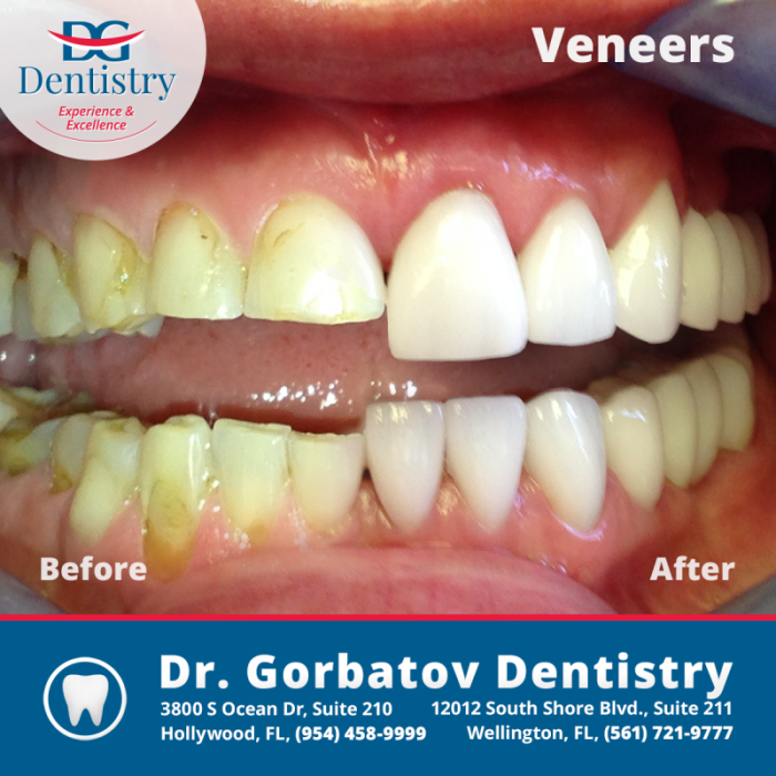 How Much Does A Smile Makeover Cost Gorbatov Dentistry
