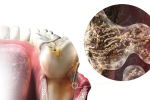 Gum disease opens up the body to a host of infections