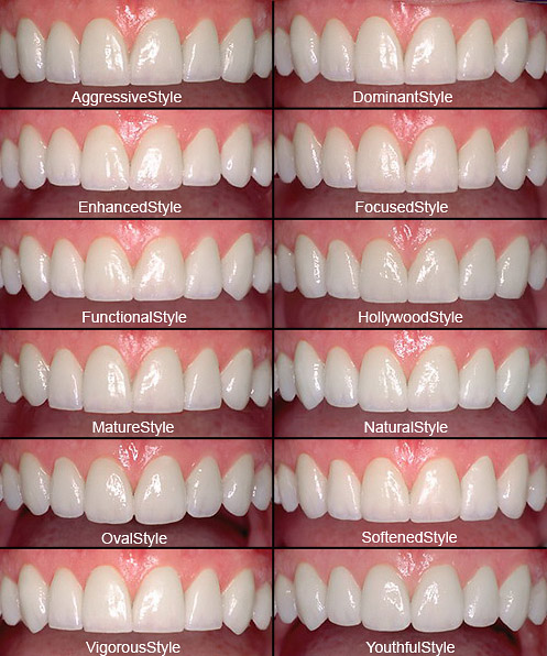 Choosing The Perfect Shaped Porcelain Veneers Gorbatov
