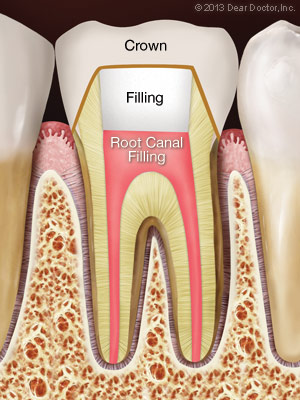 Root canal filling material (gutta percha) is placed in the canals and the tooth is sealed with a temporary filling to protect it from contamination. Then a crown is usually placed over the tooth to seal and protect it from recontamination and future damage.