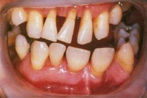 Long-Term Gum Disease Linked To Alzheimer's Disease